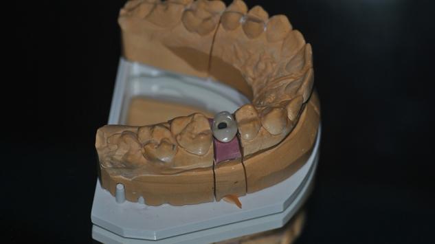 Szóló csavaros korna implantátumra